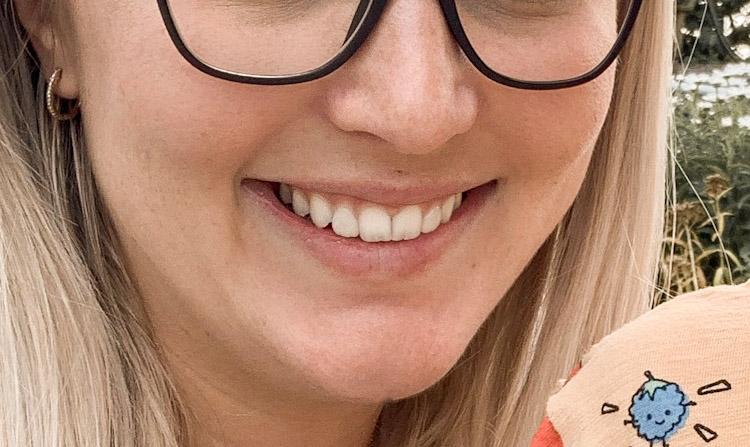 Zahnveneers – meine Erfahrung