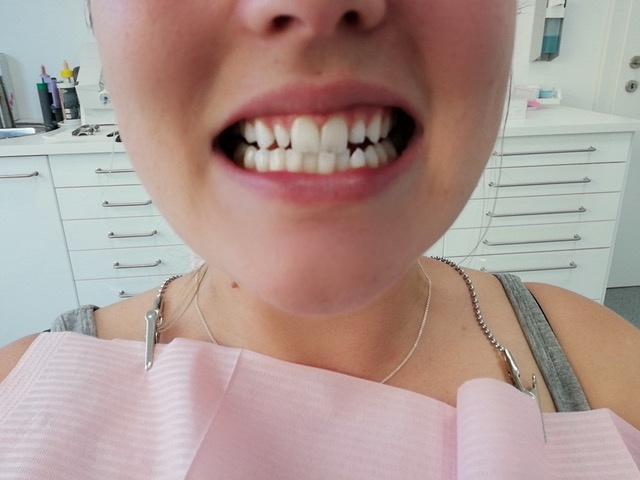 Zahnveneers-Vorher